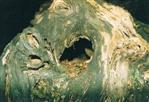 Kraken ähnlicher Baumstumpf