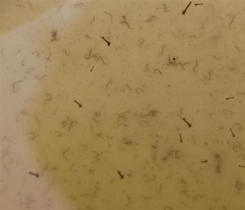 Mückenlarven(Culex vermutlich pipiens)